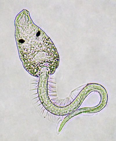 A microscopic image of the parasite Euhaplorchis californiensis.