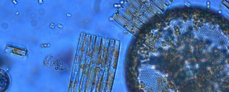 New study shows ability of plankton like these diatoms to acquire iron is sensitive to ocean acidification