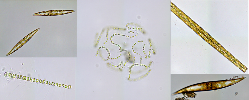Diatoms like these produce superoxide in their watery surroundings for reasons that have remained mysterious until now