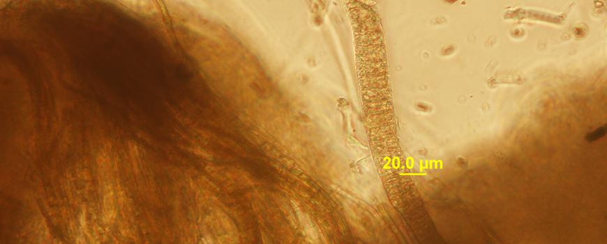 Marine Biomedicine Researchers Decode Structure of Promising Sea Compound