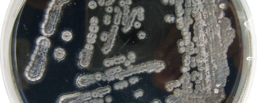 Environmental microorganisms in petri dish. Photo courtesy of Simon Fraser University
