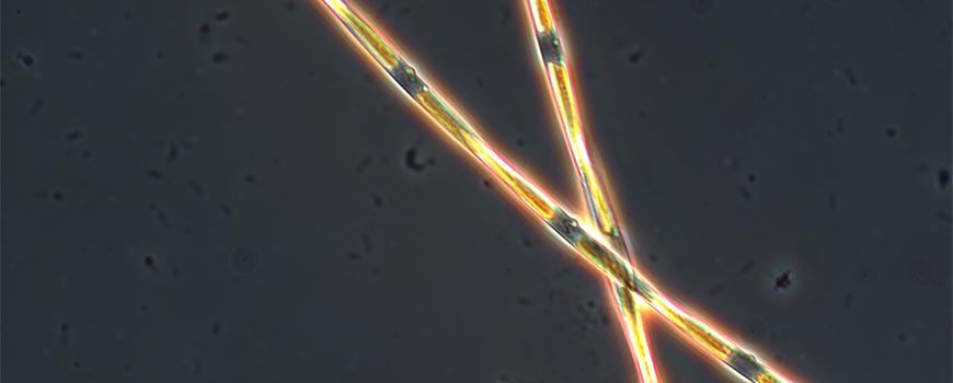 Microscopic view of domoic acid producing Pseudo-nitzschia diatom